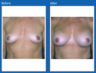 breast-augmentation-78