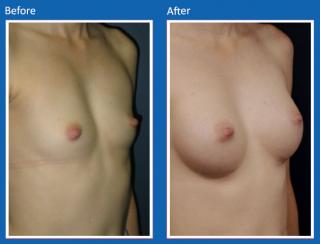 breast-augmentation-8