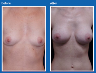 breast-augmentation-9