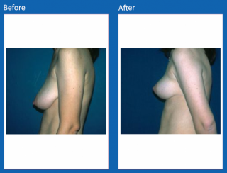 breast-lift-reduction-1