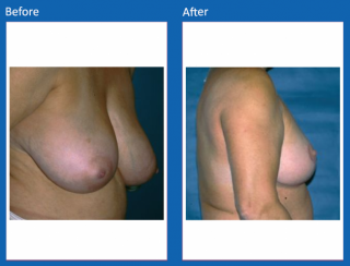 breast-lift-reduction-10
