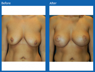 breast-lift-reduction-11