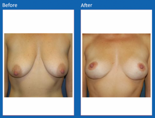 breast-lift-reduction-12