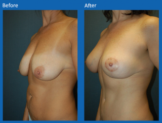 breast-lift-reduction-13