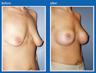 breast-lift-reduction-14