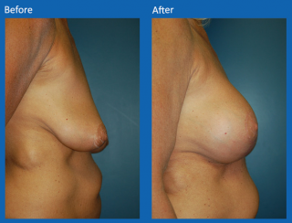 breast-lift-reduction-15