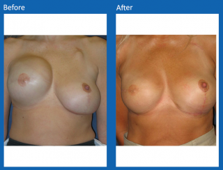 breast-lift-reduction-16