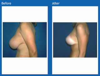 breast-lift-reduction-17