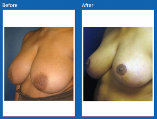 breast-lift-reduction-18