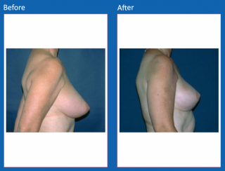 breast-lift-reduction-19