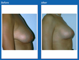 breast-lift-reduction-2