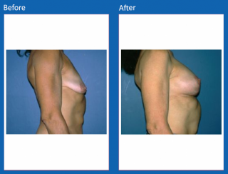 breast-lift-reduction-20
