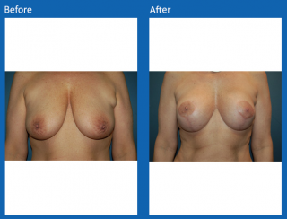 breast-lift-reduction-21