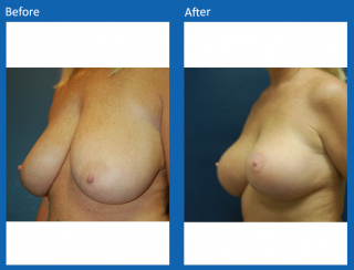 breast-lift-reduction-22