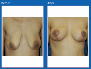 breast-lift-reduction-23