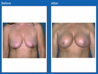 breast-lift-reduction-24