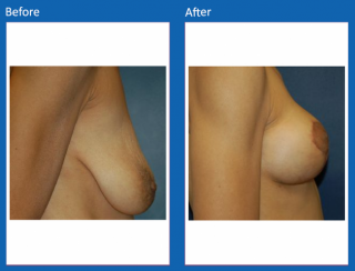 breast-lift-reduction-25