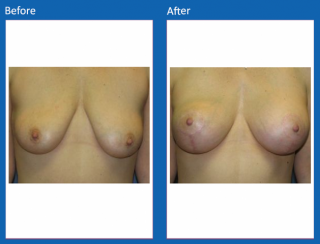 breast-lift-reduction-26