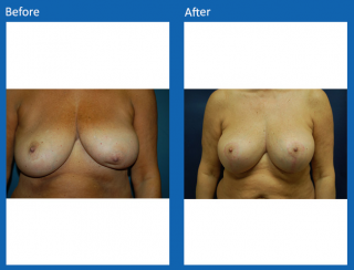 breast-lift-reduction-27
