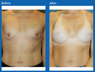 breast-lift-reduction-28