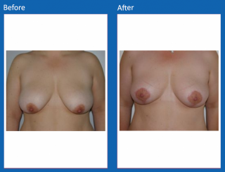 breast-lift-reduction-29