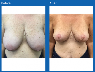 breast-lift-reduction-3