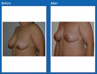 breast-lift-reduction-30