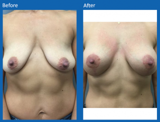 breast-lift-reduction-31