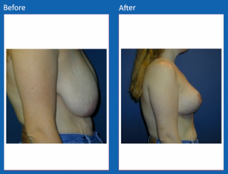 breast-lift-reduction-32