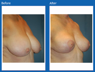 breast-lift-reduction-4