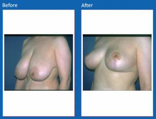 breast-lift-reduction-5