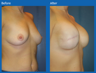breast-lift-reduction-6