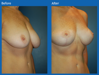 breast-lift-reduction-7