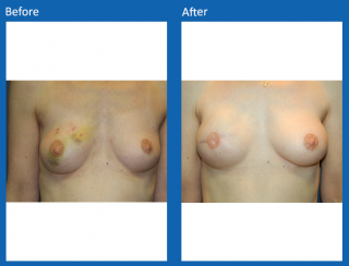 breast-lift-reduction-8