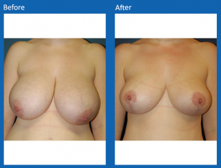 breast-lift-reduction-9