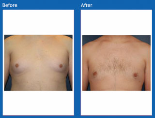 male-breast-surgery-1