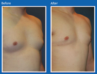male-breast-surgery-2