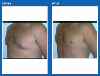 male-breast-surgery-3