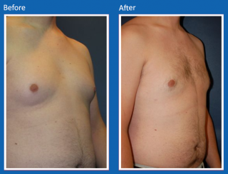 male-breast-surgery-4