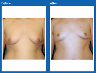 male-breast-surgery-5