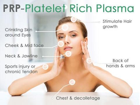 PRP – Facial Injections